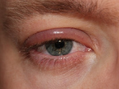 treatment for blepharitis eye condition
