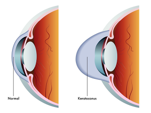 corneal cross linking for keratoconus