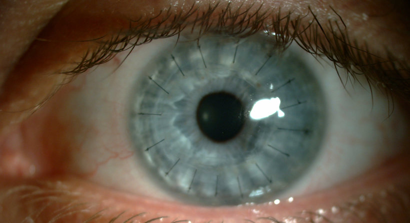 Eye looking into camera: laser eye surgery milton keynes