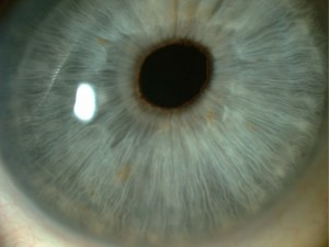 An upclose picture of an eye ready for bioptics surgery