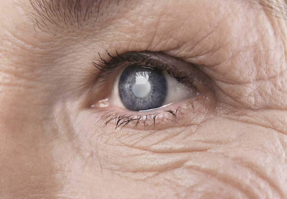 Close up of cataracts