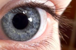 Close up of eye following a visian ICL procedure